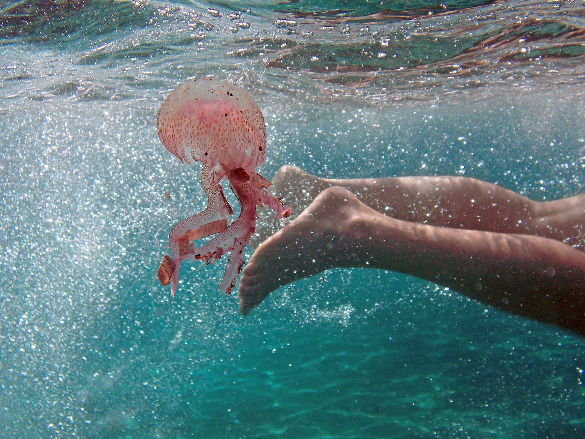 piqûre méduse moustique tiques araignées