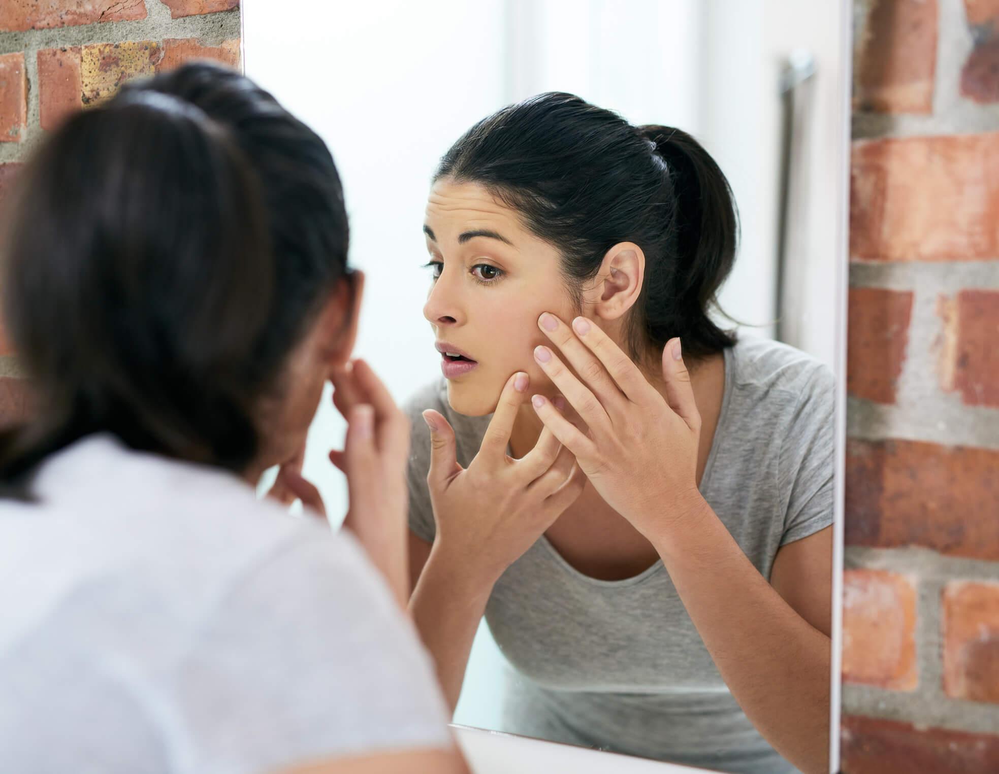 acné adolescents