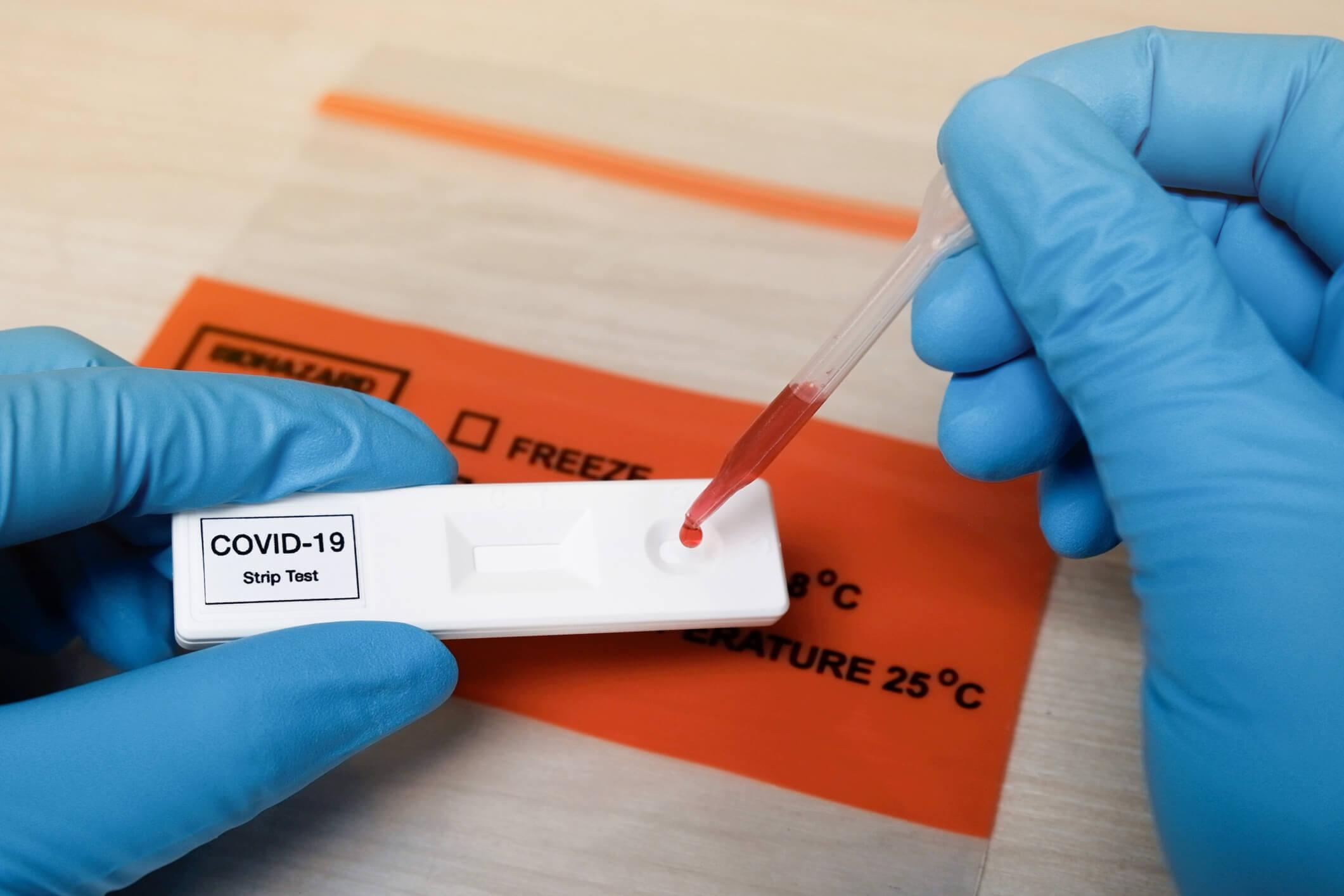 test sanguin covid