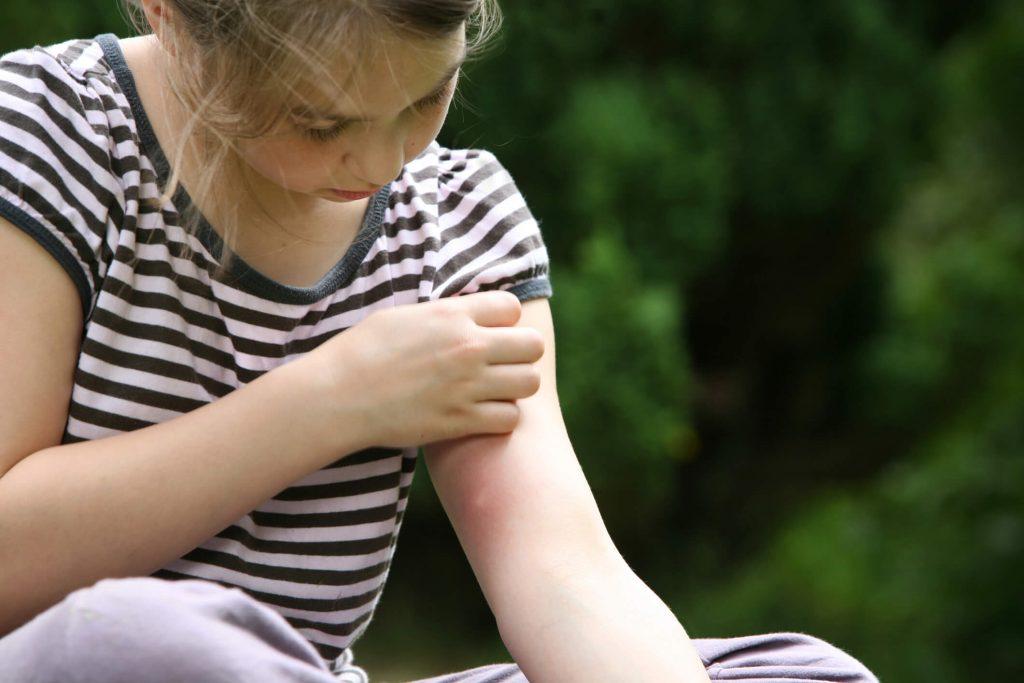 symptômes gale enfant