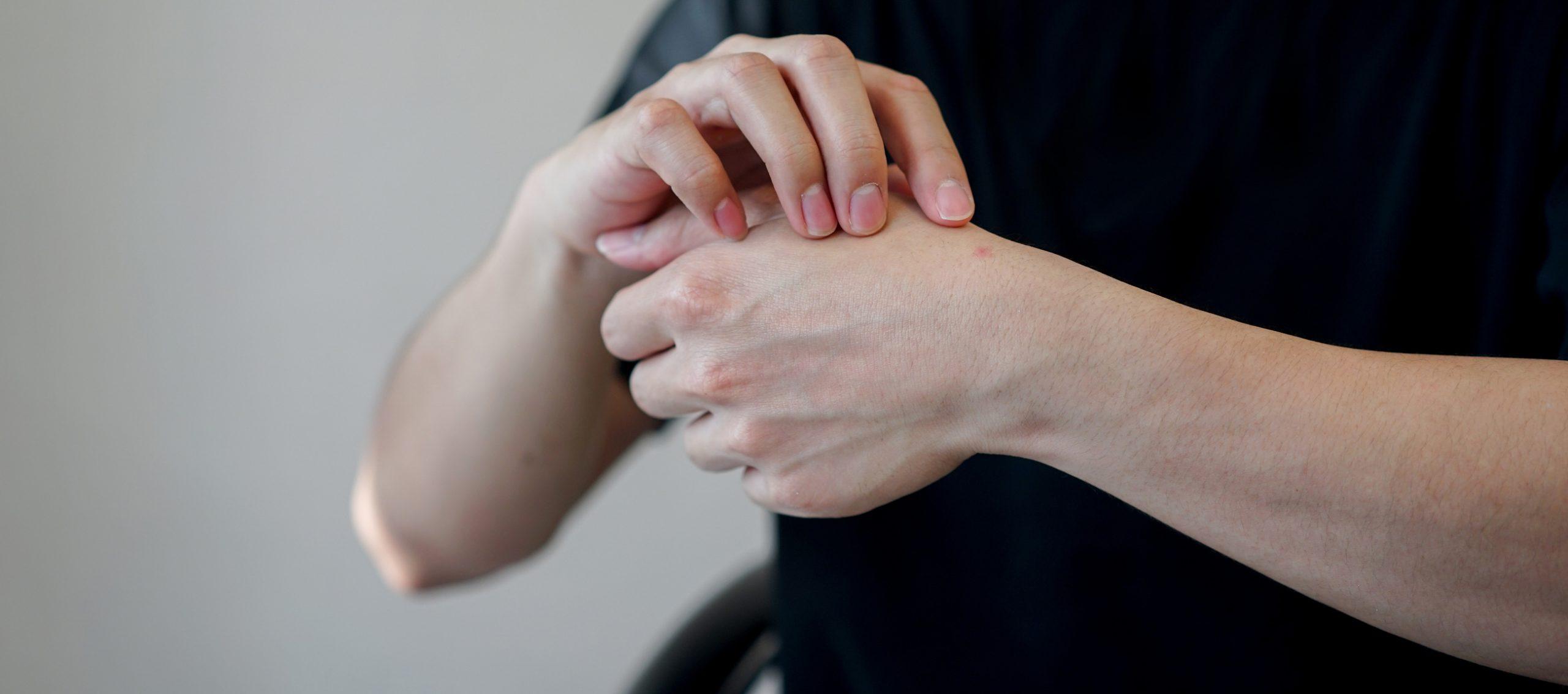 herpès main