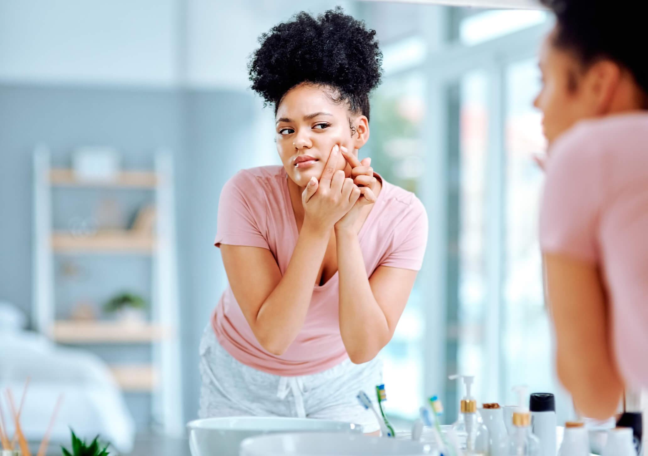 acné hormonale