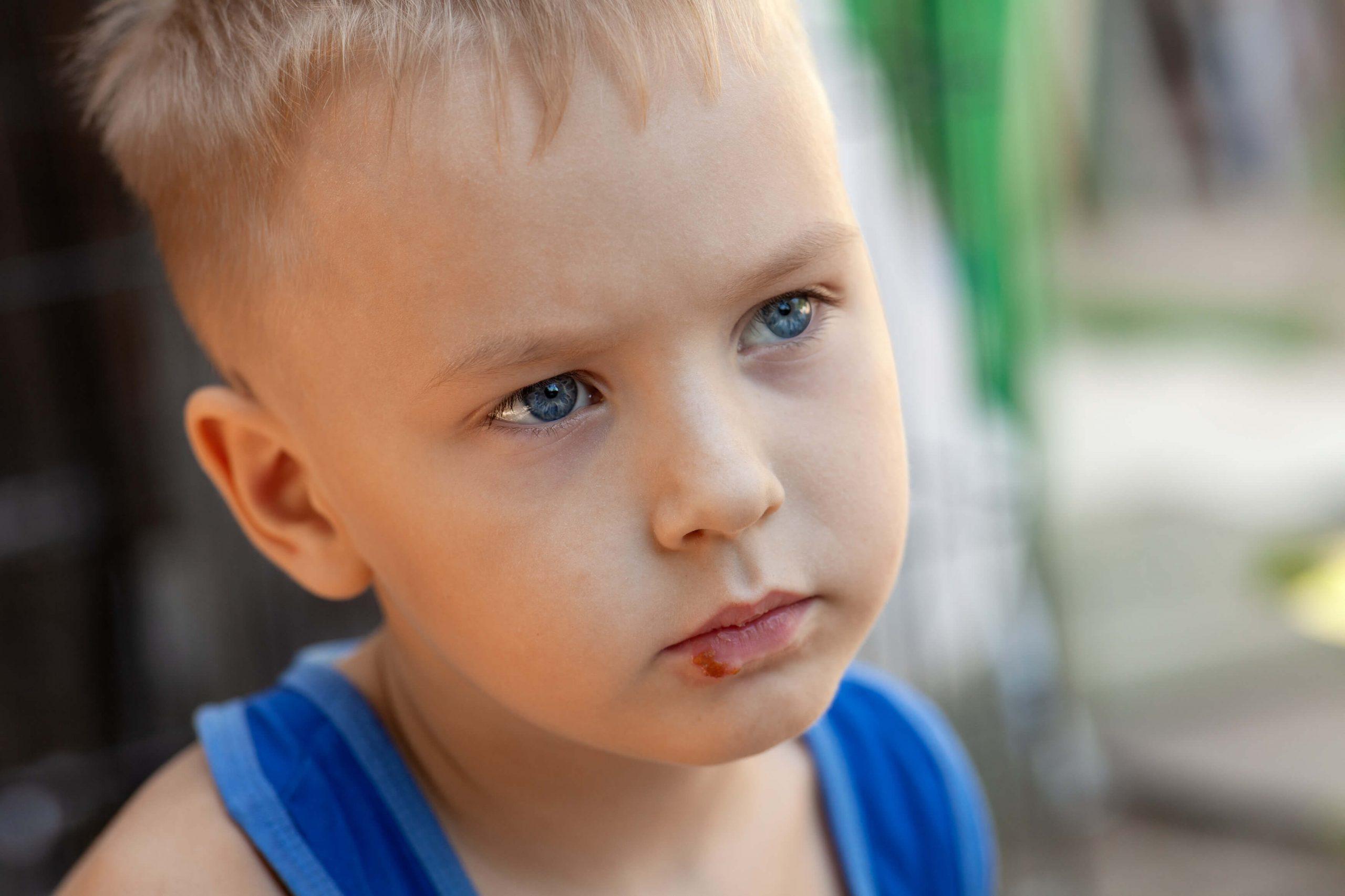 herpès enfant